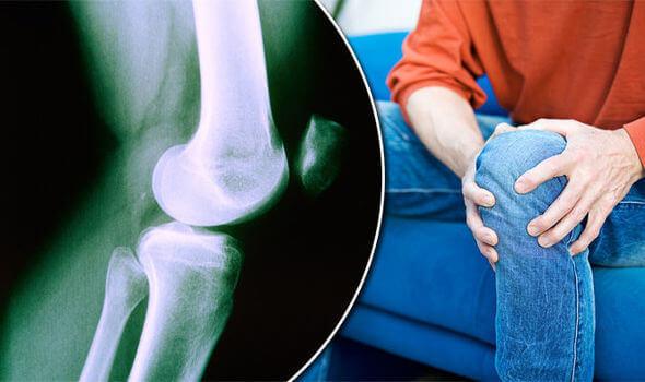 Productos para personas con artritis en Personas WIP