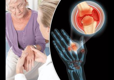 Trucos cotidianos para personas con Artritis